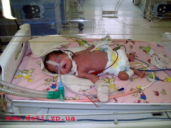 Уход за новорожденным в реанимации