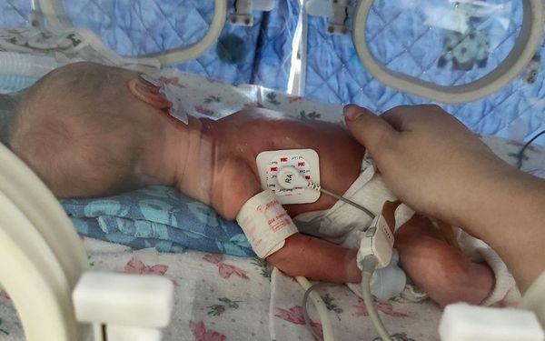 Добрі новини та нові потреби відділення анестезії та інтенсивної терапії новонароджених