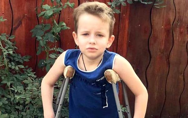 Kostya Panchenko, born in 2011 - Klippel-Trenone Syndrome