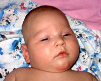 Лущенко Мария, 2 года - ДЦП