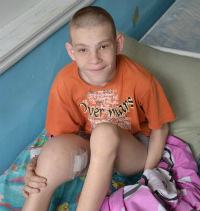 Dmytro Bondarenko, 14 years old - Osteosarcoma of the right femur