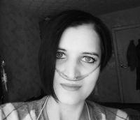 Tatyana Zlobina, born in 1993  – cystic fibrosis with pancreatic insufficiency