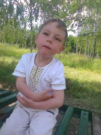 Poluektov Ivan, born in 2009 – Communicating decompensated hydrocephalus, optic nerve atrophy.