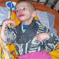 Are Older Children with Severe Developmental Disabilities to be Discharged to Die?