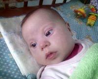 Kira Prokopchyk, born in 2011 - Complex congenital heart defects