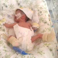 Denis Kirilash – only a few months old and has congenital pneumonia and respiratory failure.