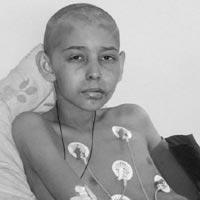 Валера Марчук – нейроэктодермальная опухоль (PNET) челюсти
