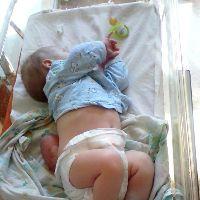 Маленький «отказник» успешно прошел первую операцию!