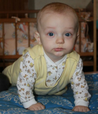 Sazanovich Mikhail, less than 1 y.o. The defect of the urinary system