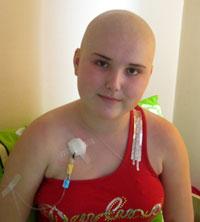 Voinylovich Alina, 14 years old – lymphogranulomatosis