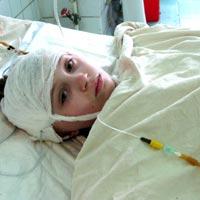 Karina Voloshynova, born in 2000 - internal hydrocephalus